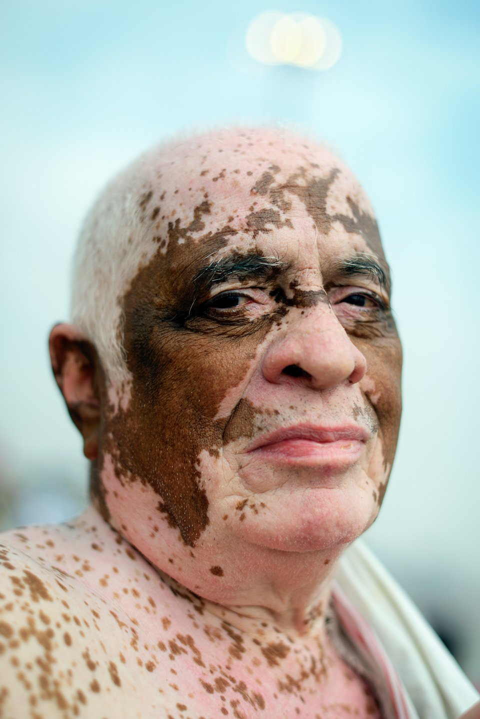 The man in this photo was born with Vitiligo, a disorder in which white patches appear on different parts of the body. These patterns usually develop symmetrically across bodies and faces. This photo is one in a series called Vitiligo. (Agora)