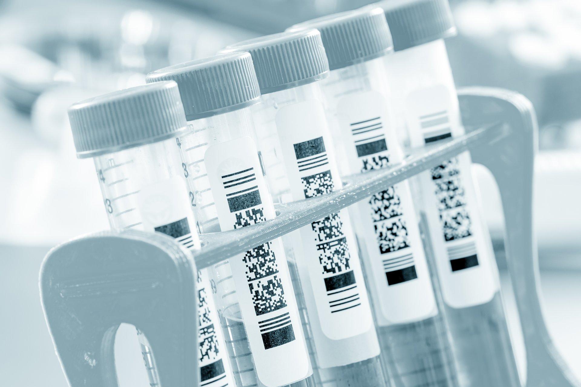 URPL o wyrobach medycznych do diagnostyki in vitro używanych w diagnostyce zakażeń koronawirusem