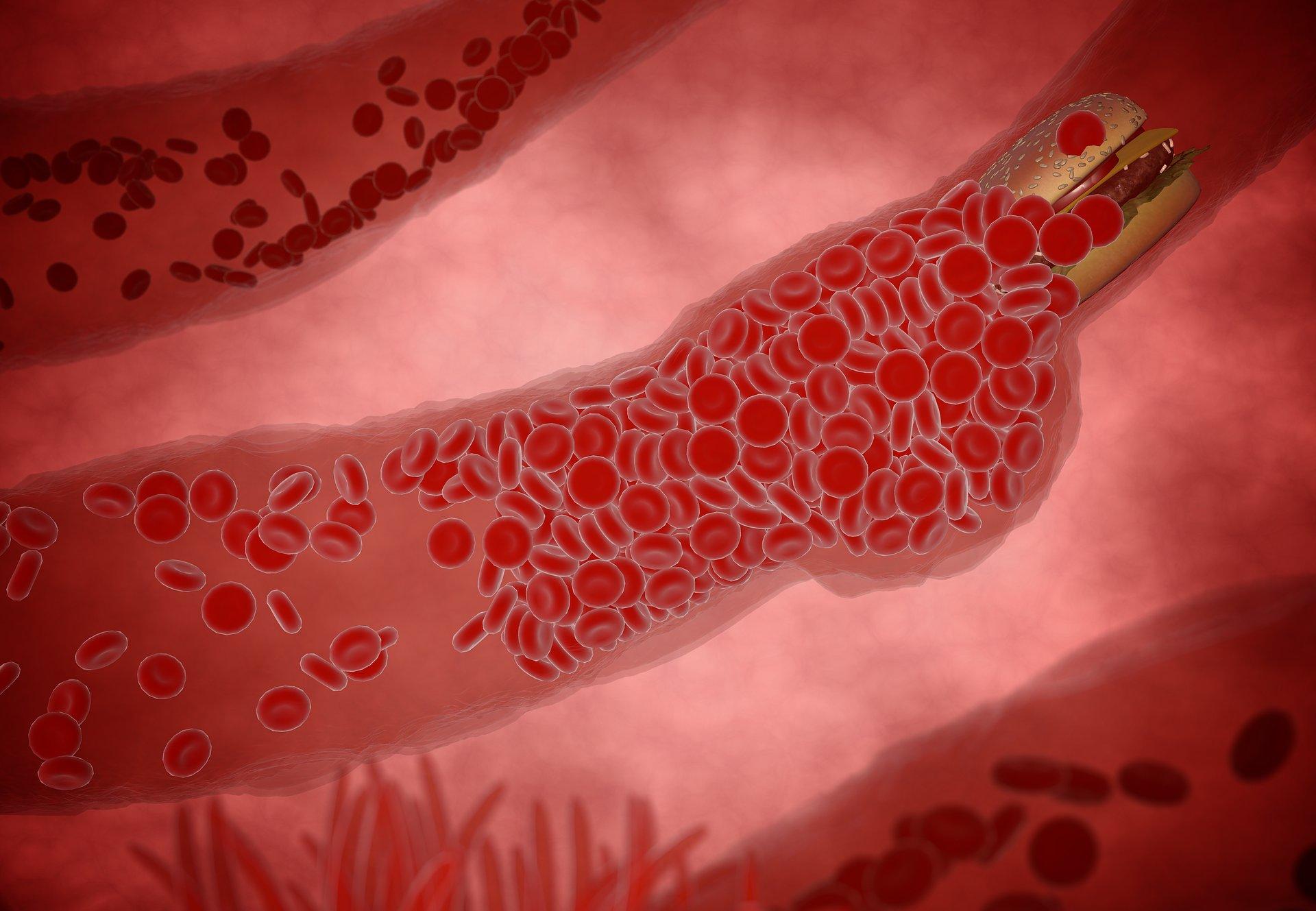 Metody leczenia miażdżycy oraz farmakoterapia zaburzeń przemian cholersterolu - praca specjalizacyjna