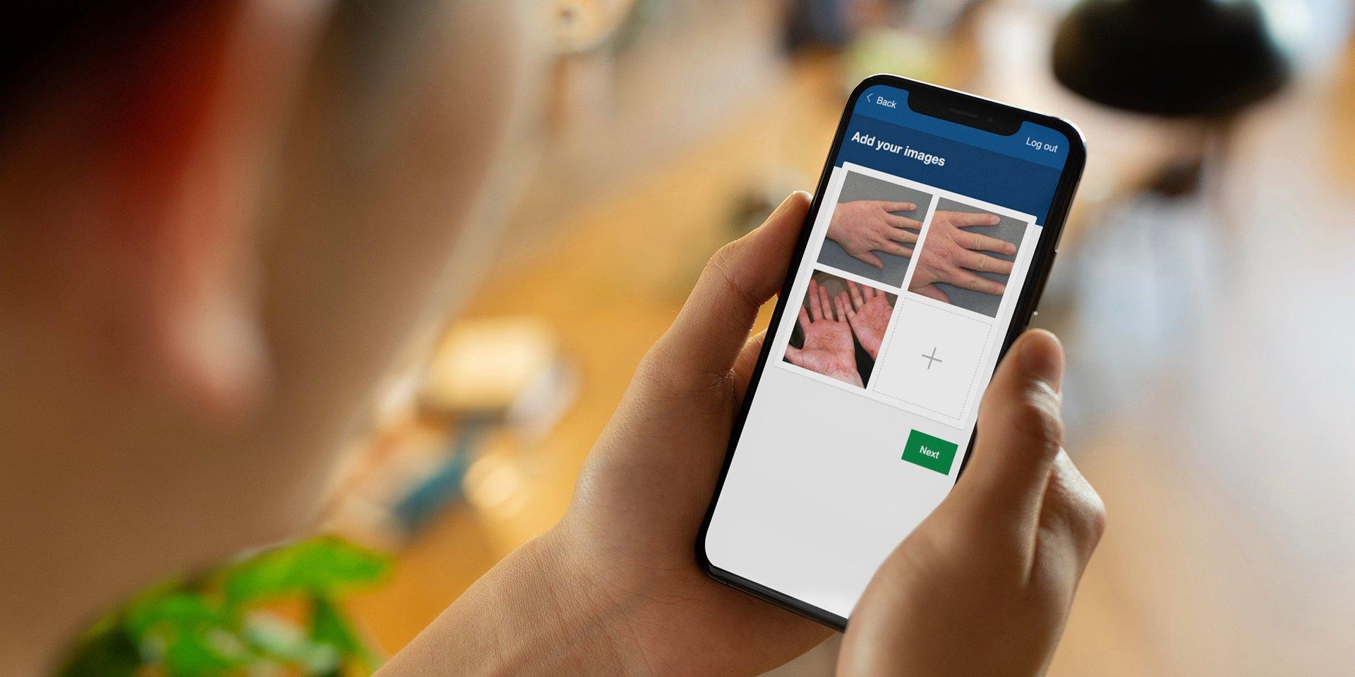 Storm ID's innovative digital dermatology service to be scaled up across Scotland