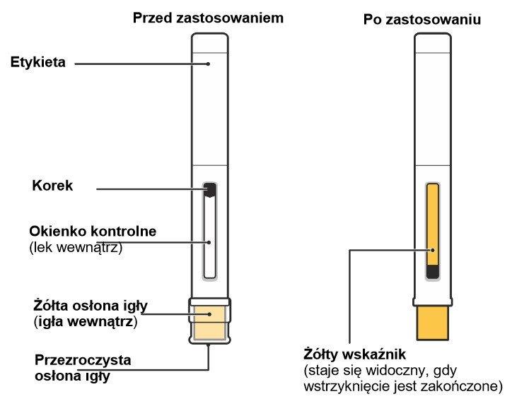 Ograniczenie dostępności leku Nucala (mepolizumab) w postaci roztworu do wstrzykiwań we wstrzykiwaczu