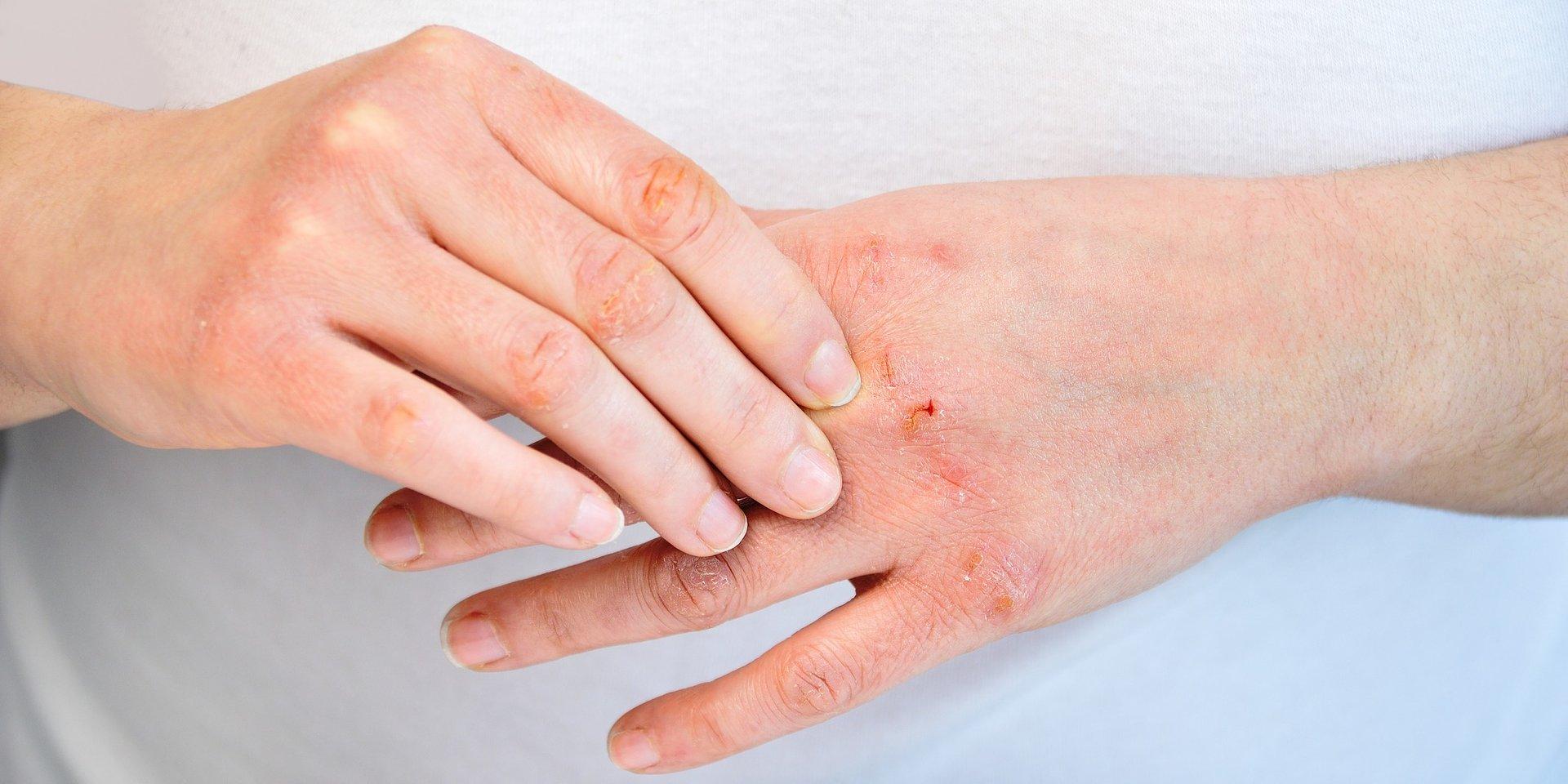 Spracowane dłonie służby zdrowia. Jak dbać o skórę, gdy niezbędna jest nieustanna dezynfekcja?