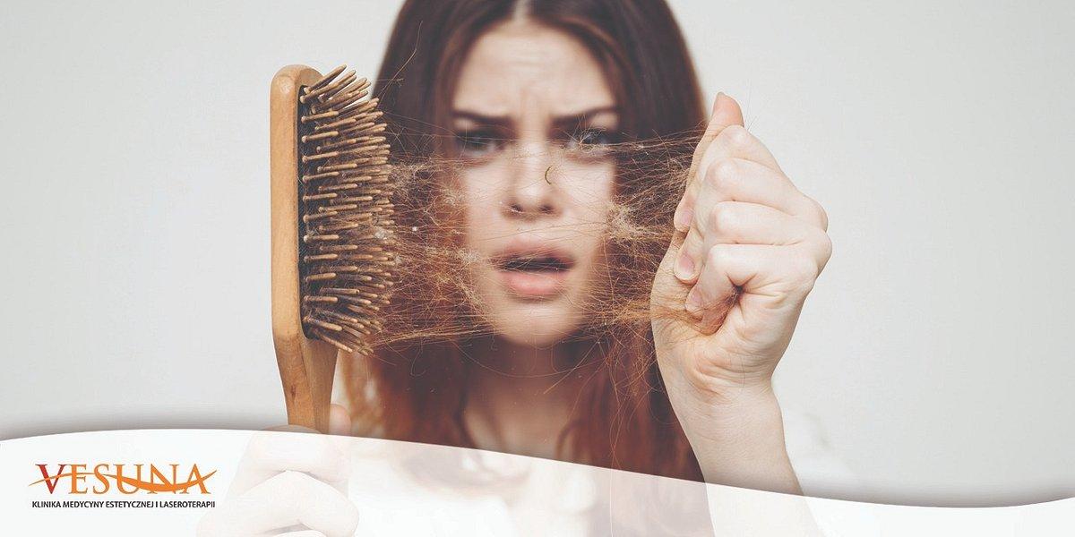 Jak radzić sobie z nadmiernym wypadaniem włosów?