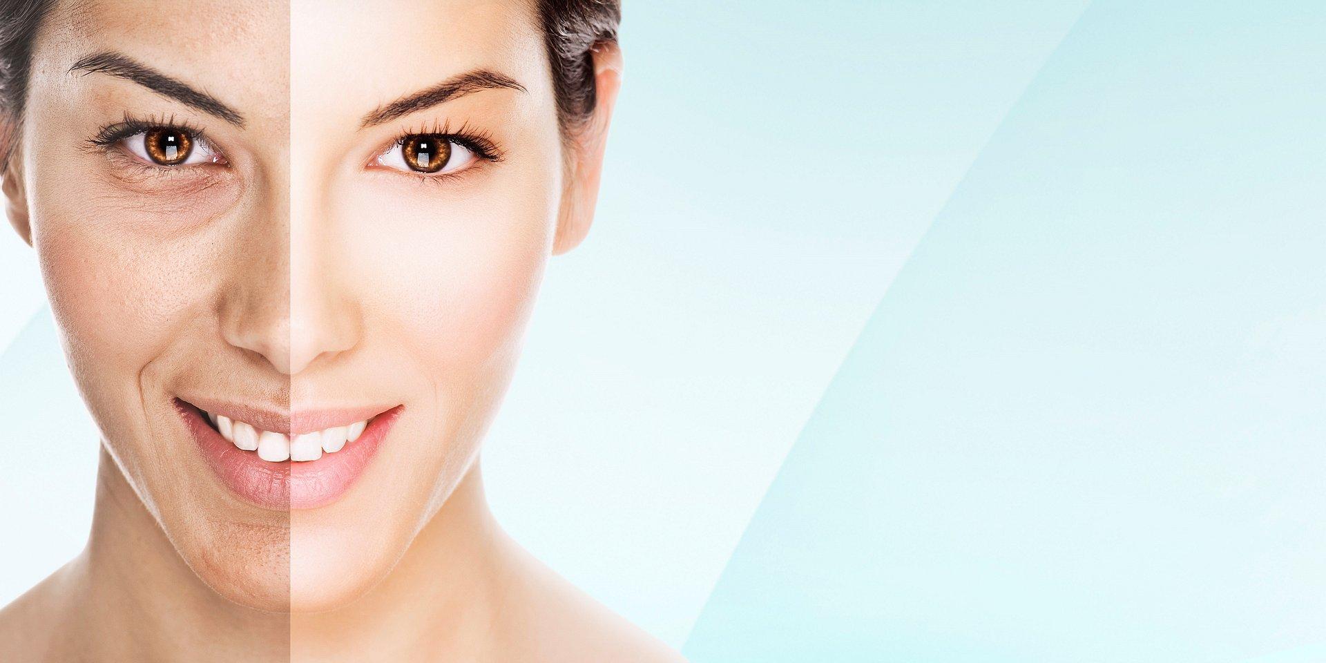 Jak zadbać o skórę po intensywnym korzystaniu z uroków lata?