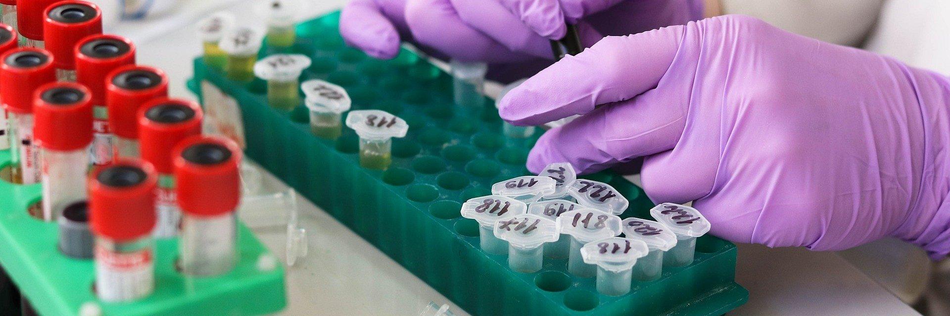 (nie)Bezpieczne testy genetyczne – wyzwanie dla ustawodawcy już kolejnej kadencji