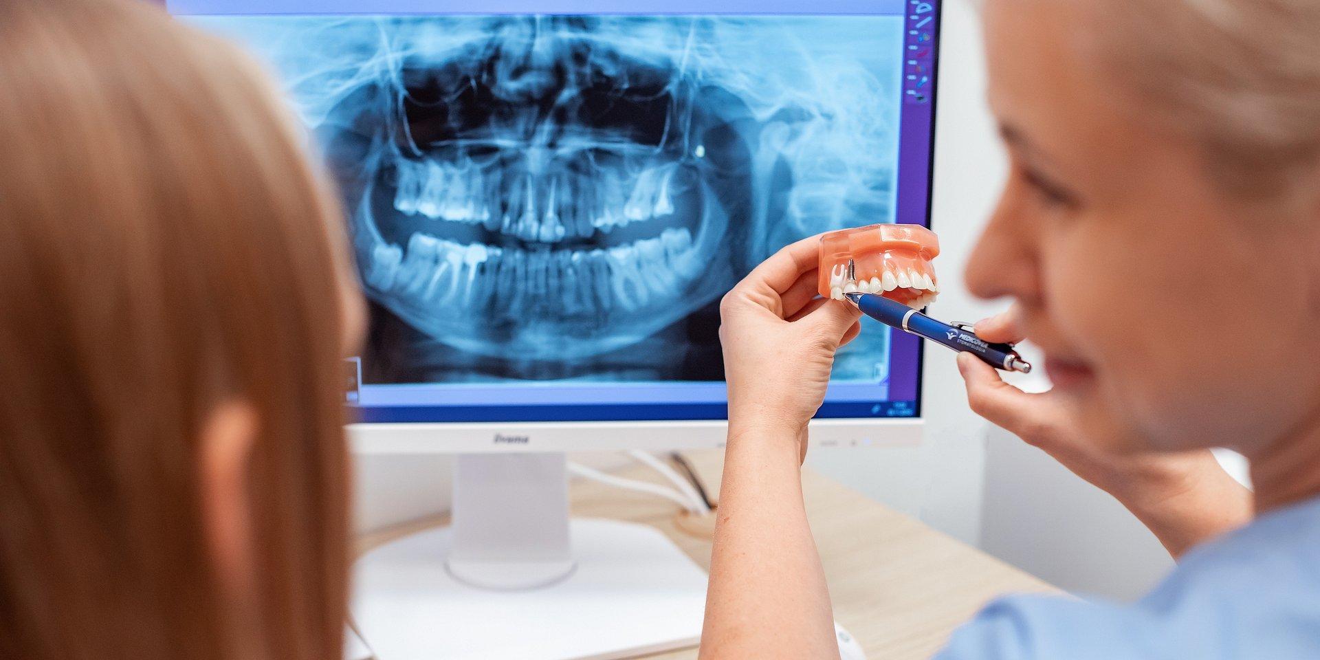Bruksizm – stres widoczny na zębach?
