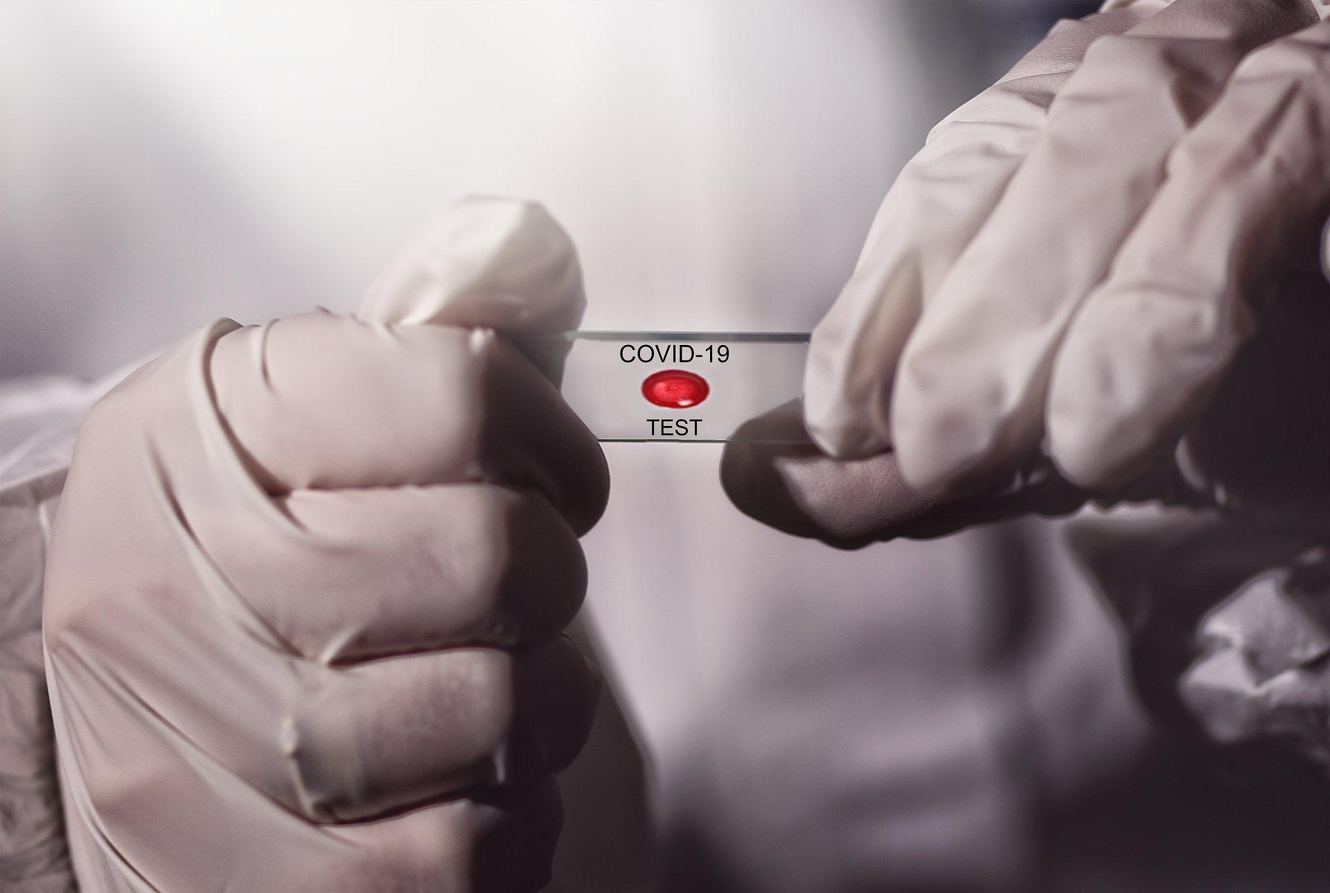 Farmaceuci chcą szybkiego dostępu do testów na COVID-19