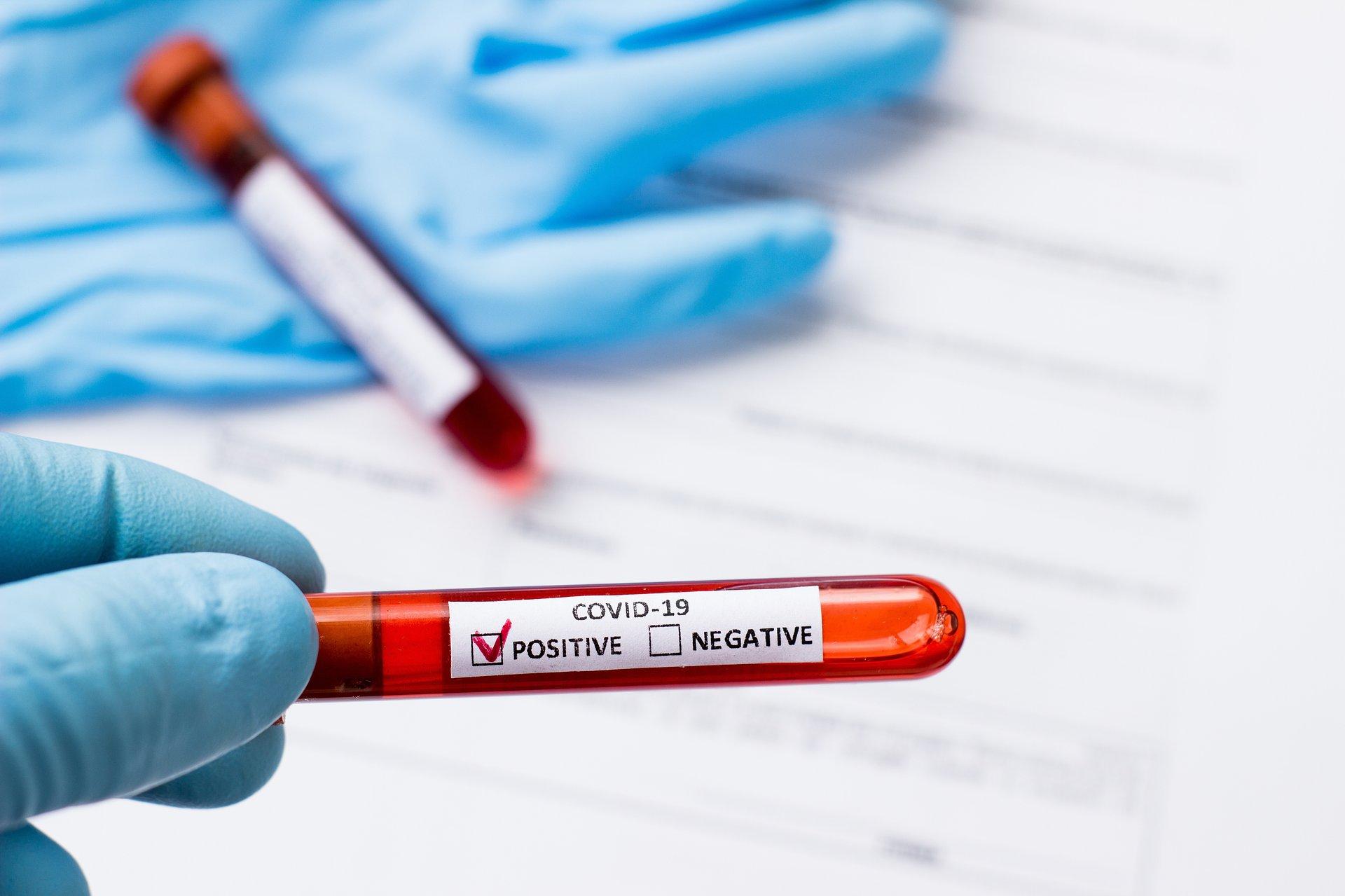 Szybki dostęp do testów na COVID-19 dla farmaceutów tylko na papierze?