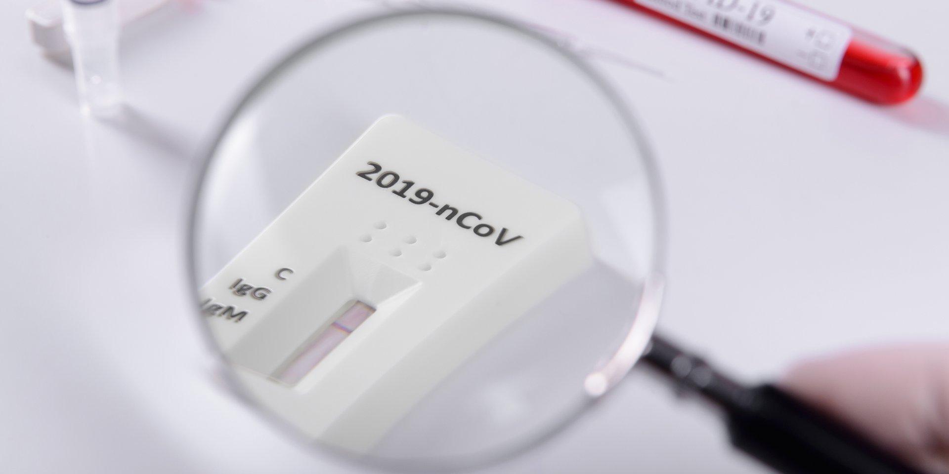 Testy serologiczne dla farmaceutów. Szybki sposób na sprawdzenie personelu